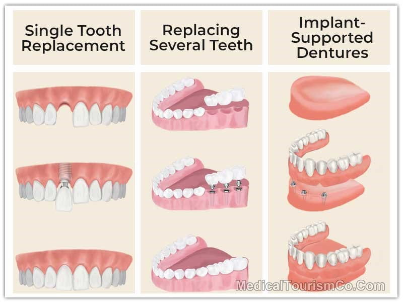 Dental Implants in Mexico Options